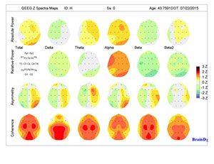 Brain-Mapping1